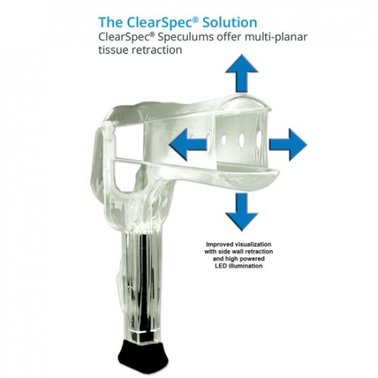 Clearspec Lighted Speculum, Small, Case of 100